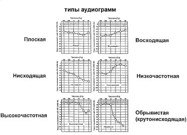 audiogram-types