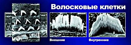 voloskovye_kletki_450x154