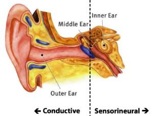 hearing_types